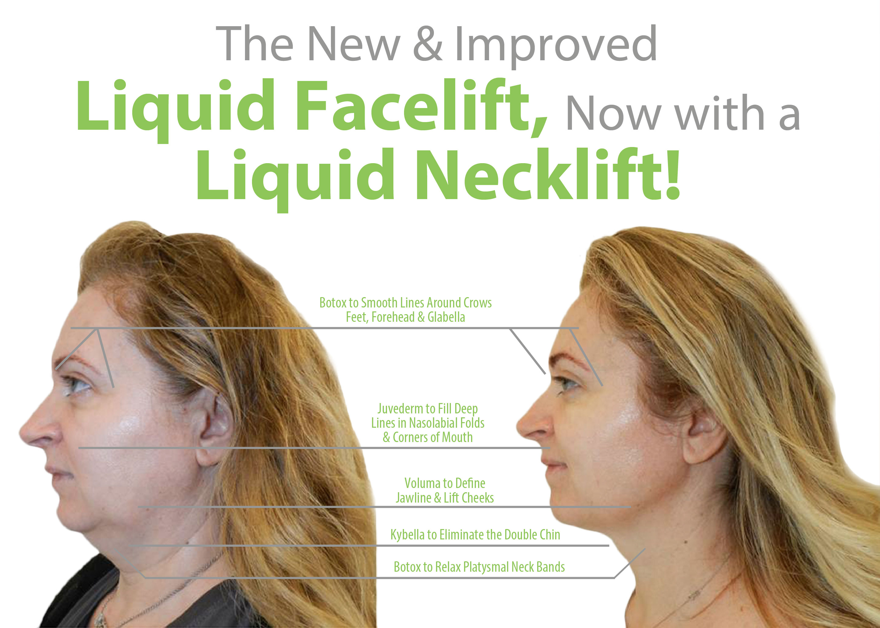Final Version Liquid Facelift Liquid Necklift Lift MD
