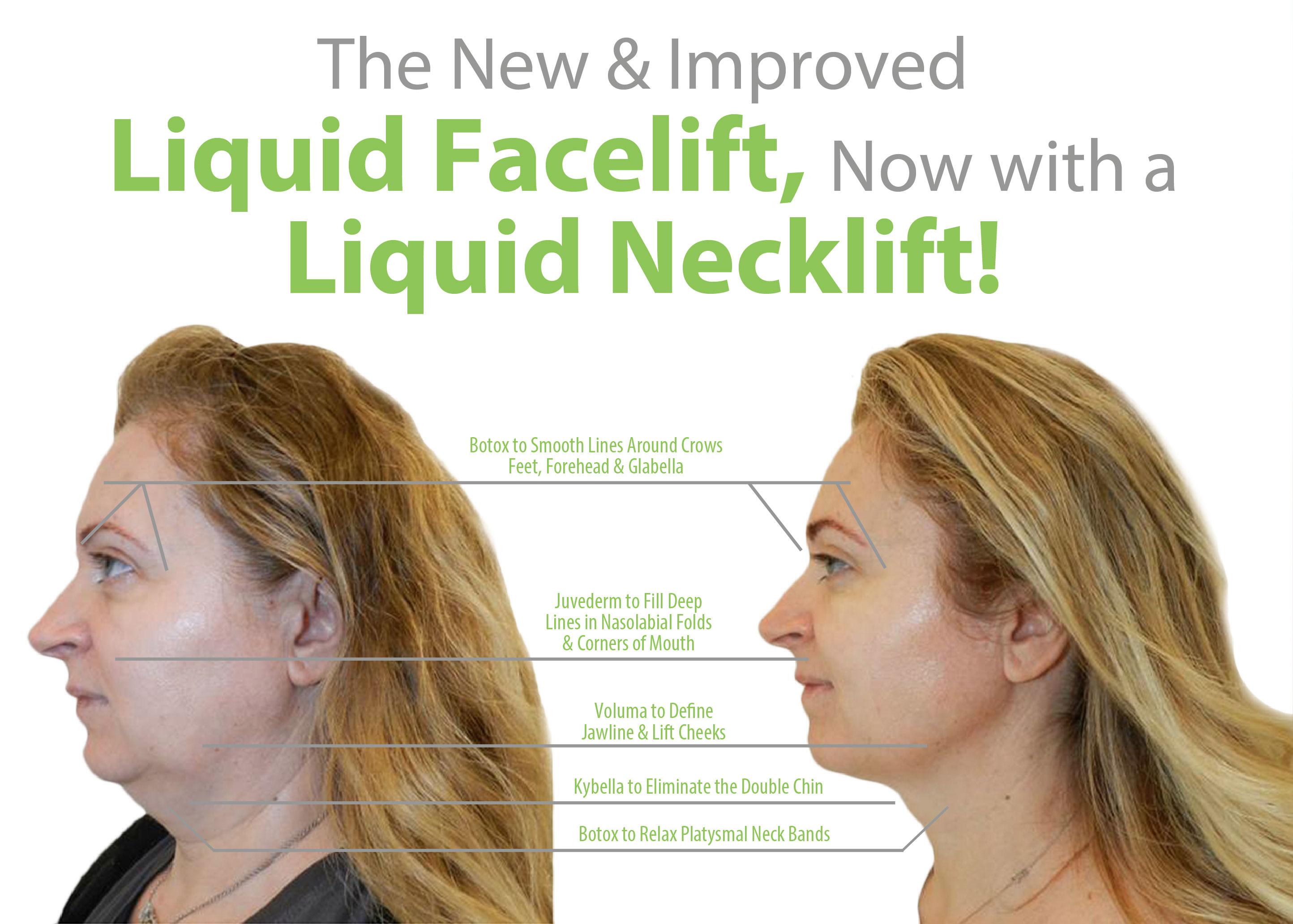 Final Version Liquid Facelift Liquid Necklift Lift MD